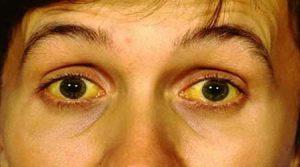 jaundice symptomen lever gal falen geel thanatopraxie balsemen